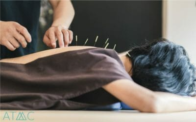 integrative treatment acupuncture